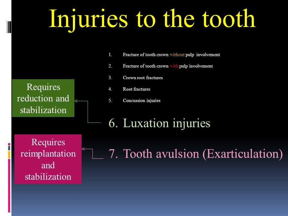 Injuries to the tooth 1.Fracture of tooth crown without pulp involvement 2.Fracture of tooth crown with pulp involvement 3.Crown root fractures 4.Root