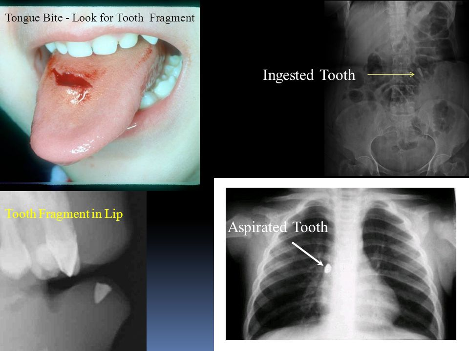 Ingested Tooth Aspirated Tooth Tongue Bite - Look for Tooth Fragment Tooth Fragment in Lip