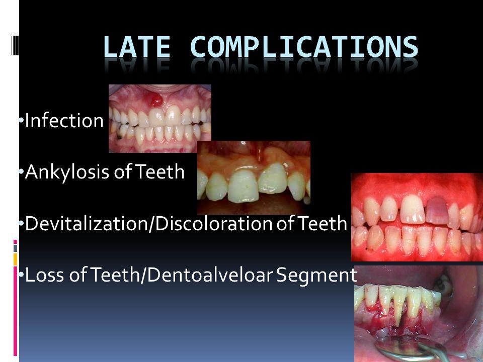Infection Ankylosis of Teeth Devitalization/Discoloration of Teeth Loss of Teeth/Dentoalveloar Segment