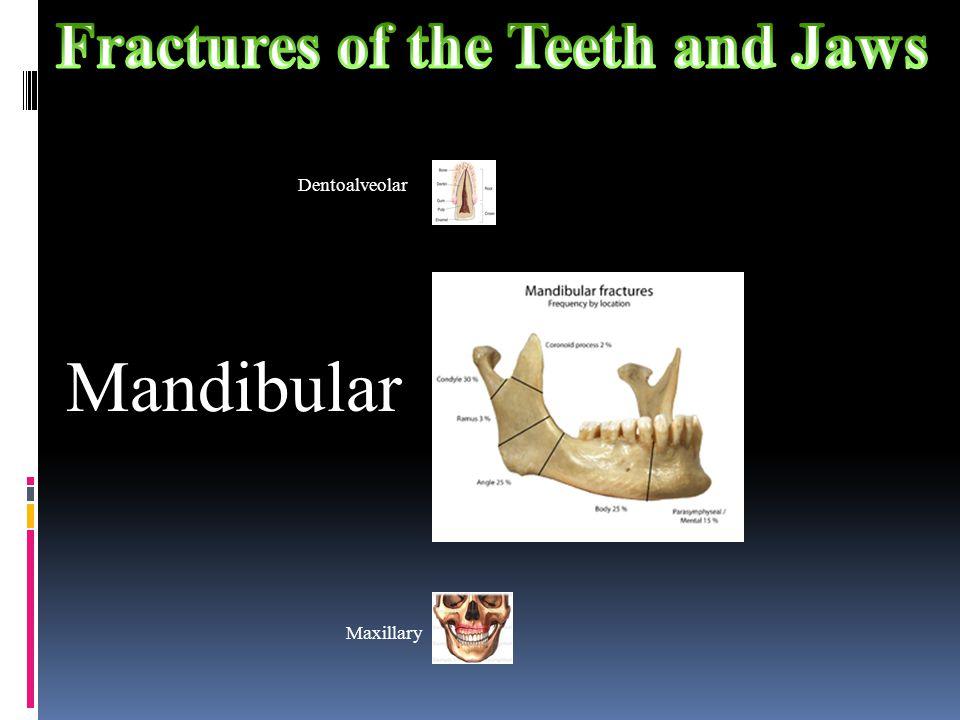 Dentoalveolar Mandibular Maxillary