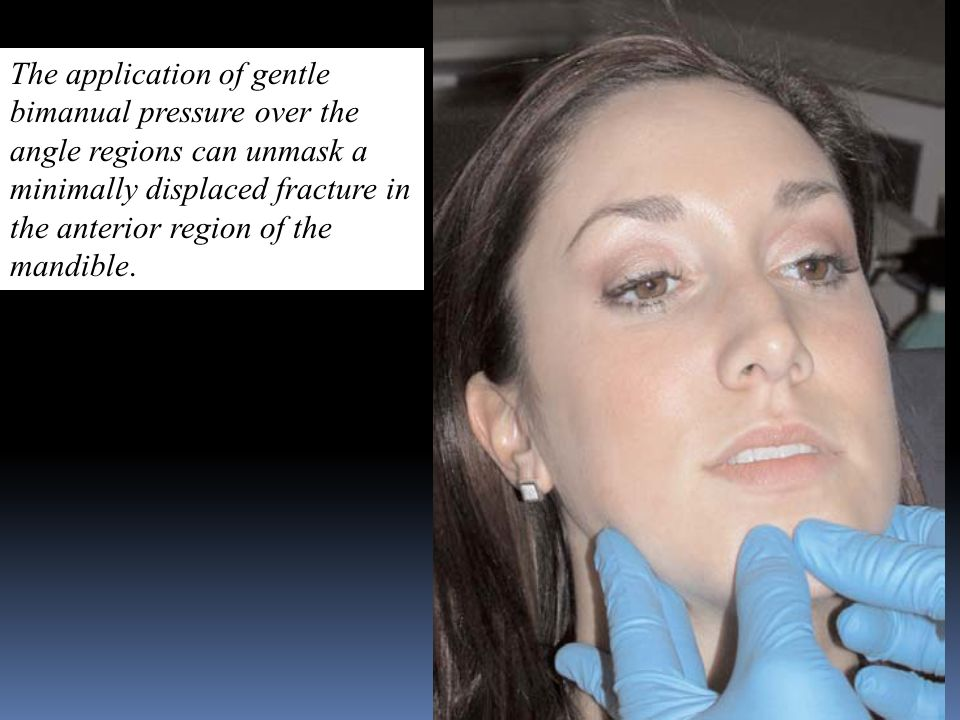 The application of gentle bimanual pressure over the angle regions can unmask a minimally displaced fracture in the anterior region of the mandible.