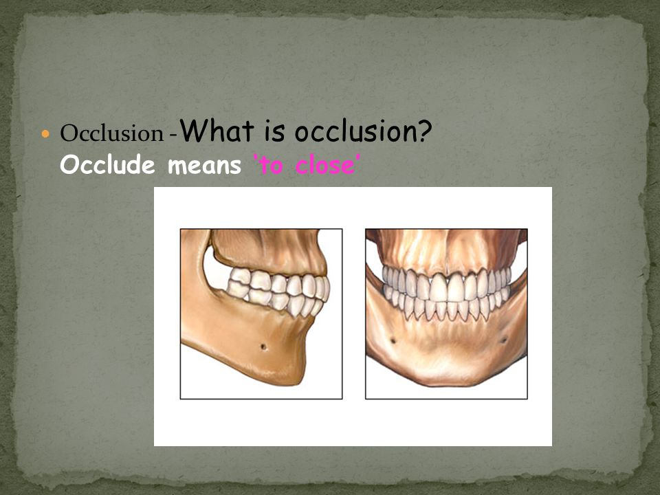 Occlusion - What is occlusion? Occlude means to close