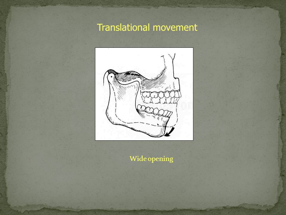 Translational movement Wide opening