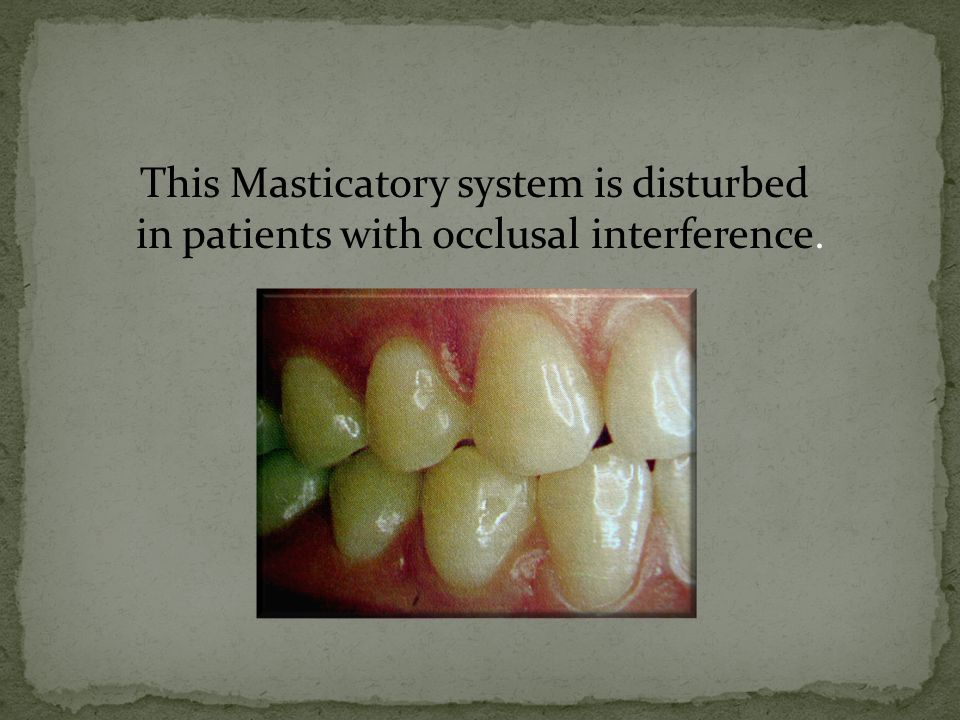 This Masticatory system is disturbed in patients with occlusal interference.