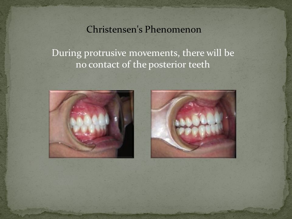 Christensen's Phenomenon During protrusive movements, there will be no contact of the posterior teeth