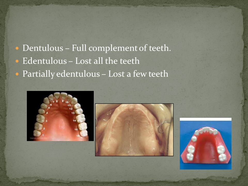 Dentulous – Full complement of teeth. Edentulous – Lost all the teeth Partially edentulous – Lost a few teeth