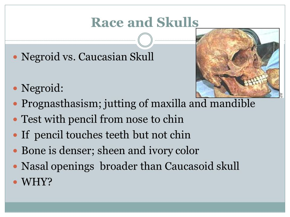 Race and Skulls Negroid vs.