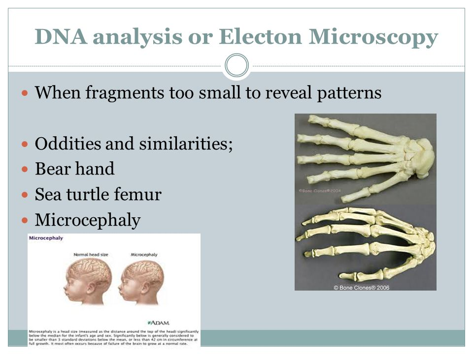DNA analysis or Electon Microscopy When fragments too small to reveal patterns Oddities and similarities; Bear hand Sea turtle femur Microcephaly