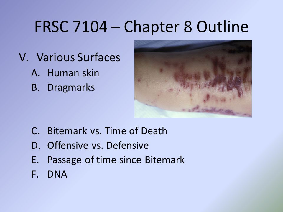 V.Various Surfaces A.Human skin B.Dragmarks C.Bitemark vs. Time of Death D.Offensive vs. Defensive E.Passage of time since Bitemark F.DNA