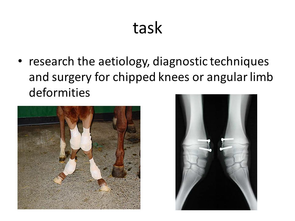 task research the aetiology, diagnostic techniques and surgery for chipped knees or angular limb deformities