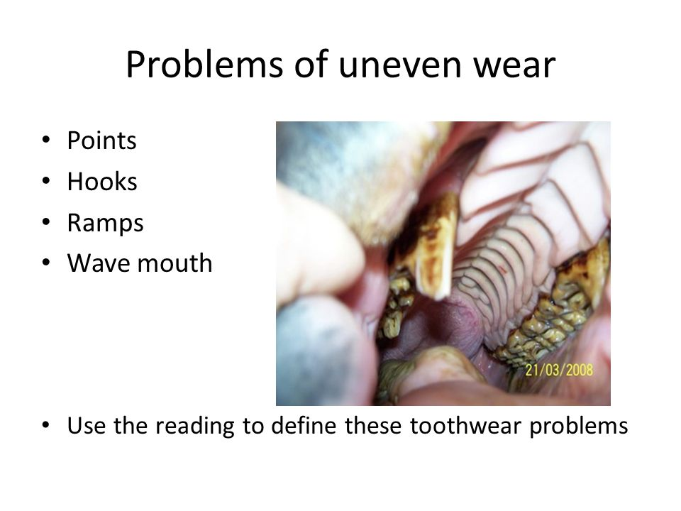 Problems of uneven wear Points Hooks Ramps Wave mouth Use the reading to define these toothwear problems