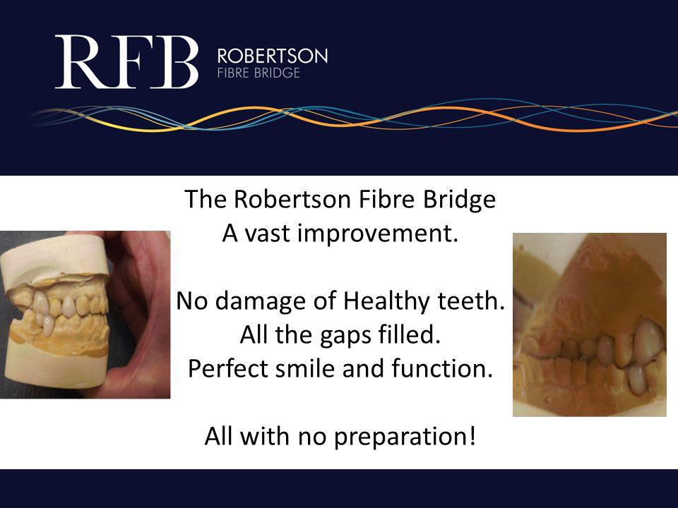 The Robertson Fibre Bridge A vast improvement. No damage of Healthy teeth.