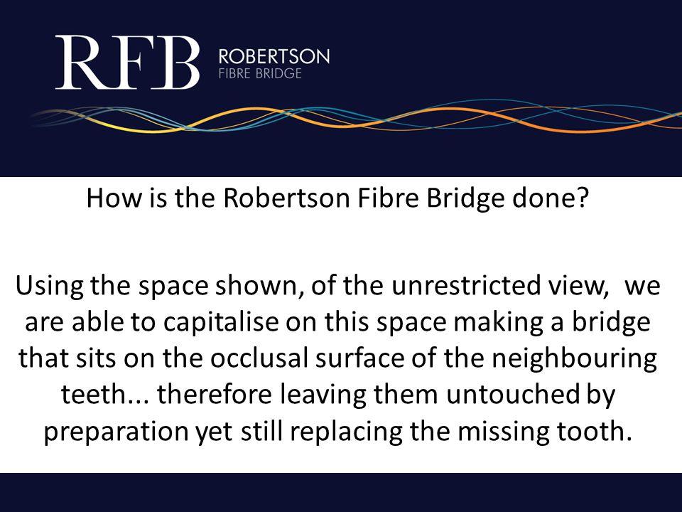 How is the Robertson Fibre Bridge done.