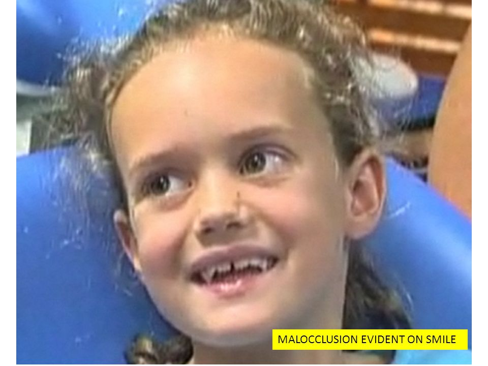 MALOCCLUSION EVIDENT ON SMILE