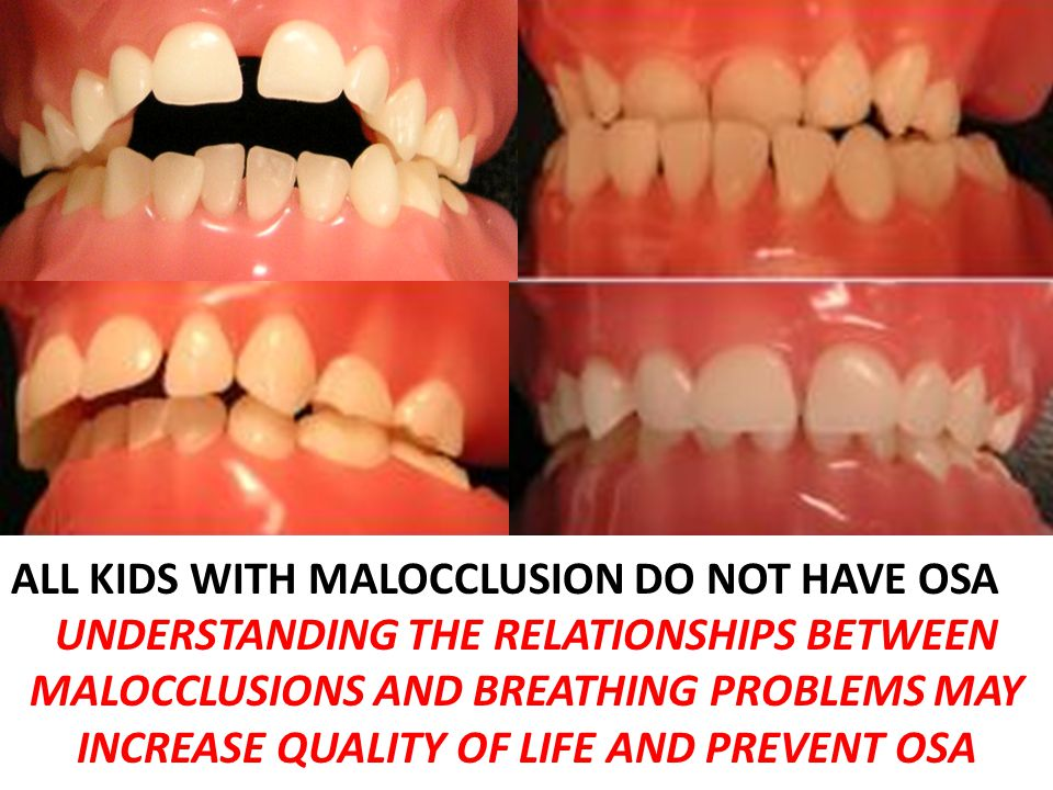 ALL KIDS WITH MALOCCLUSION DO NOT HAVE OSA UNDERSTANDING THE RELATIONSHIPS BETWEEN MALOCCLUSIONS AND BREATHING PROBLEMS MAY INCREASE QUALITY OF LIFE AND PREVENT OSA
