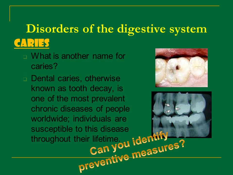 Disorders of the digestive system Caries What is another name for caries? Dental caries, otherwise known as tooth decay, is one of the most prevalent