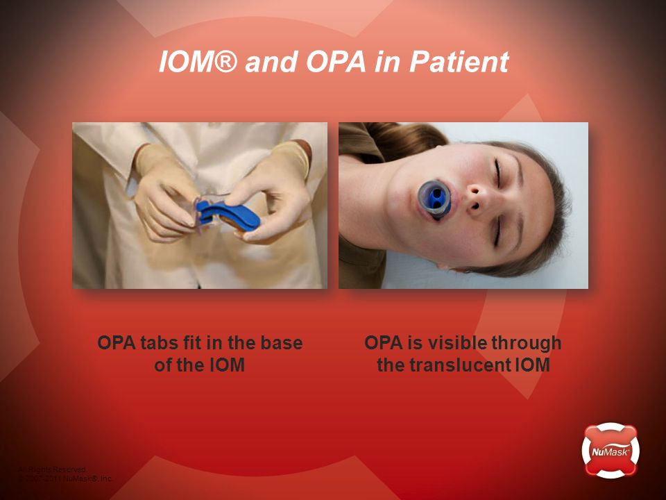 OPA is visible through the translucent IOM OPA tabs fit in the base of the IOM IOM® and OPA in Patient All Rights Reserved.