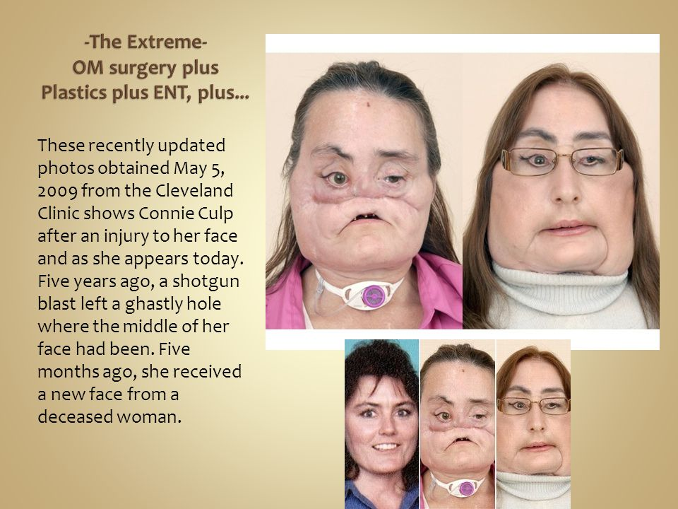 These recently updated photos obtained May 5, 2009 from the Cleveland Clinic shows Connie Culp after an injury to her face and as she appears today. F