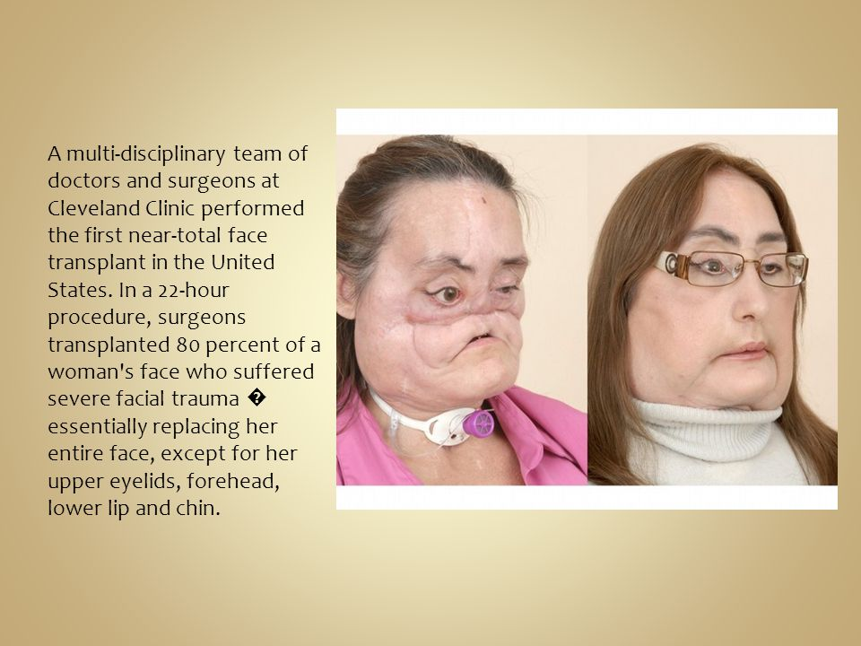 A multi-disciplinary team of doctors and surgeons at Cleveland Clinic performed the first near-total face transplant in the United States. In a 22-hou