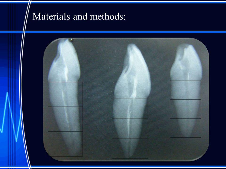 Photoshop analysis of the remnant material surface after instrumentation.