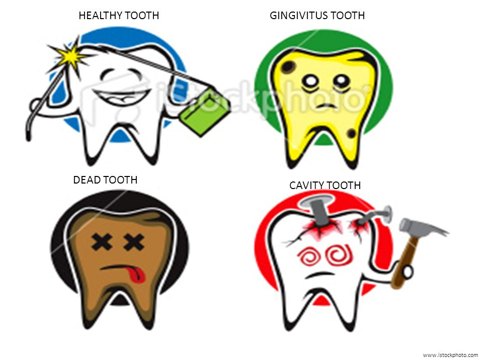 www.istockphoto.com HEALTHY TOOTHGINGIVITUS TOOTH CAVITY TOOTH DEAD TOOTH