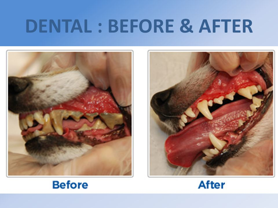 DENTAL : BEFORE & AFTER