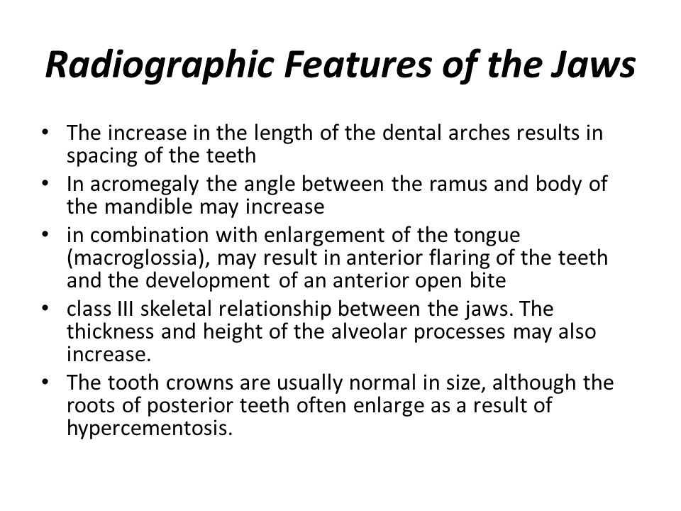 Radiographic Features of the Jaws The increase in the length of the dental arches results in spacing of the teeth In acromegaly the angle between the