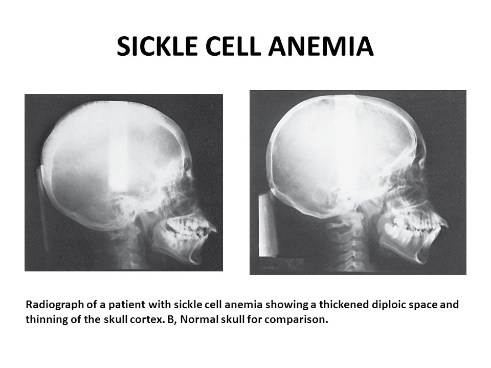 SICKLE CELL ANEMIA Radiograph of a patient with sickle cell anemia showing a thickened diploic space and thinning of the skull cortex. B, Normal skull