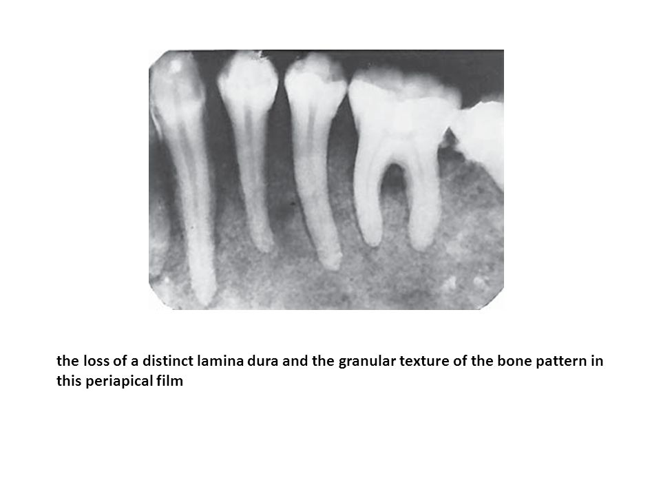 Granular bone pattern that was characteristic in all intraoral films.