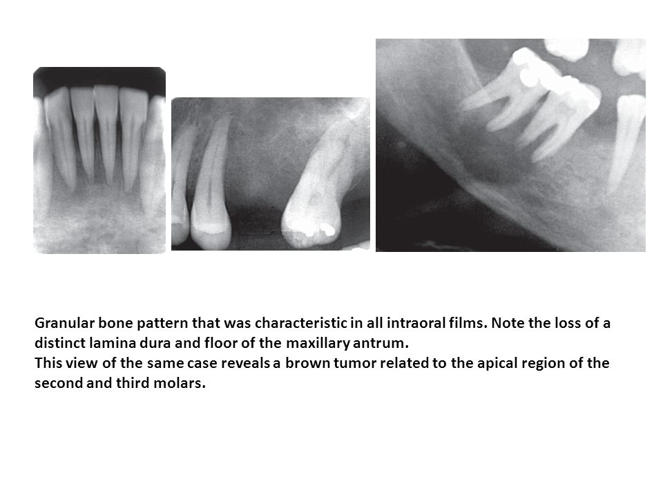 Granular bone pattern that was characteristic in all intraoral films. Note the loss of a distinct lamina dura and floor of the maxillary antrum. This