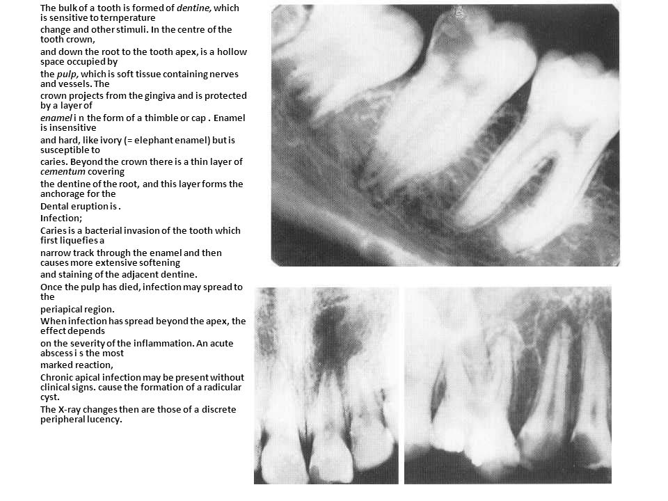 The bulk of a tooth is formed of dentine, which is sensitive to ternperature change and other stimuli.