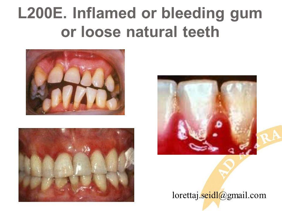 L200E. Inflamed or bleeding gum or loose natural teeth lorettaj.seidl@gmail.com