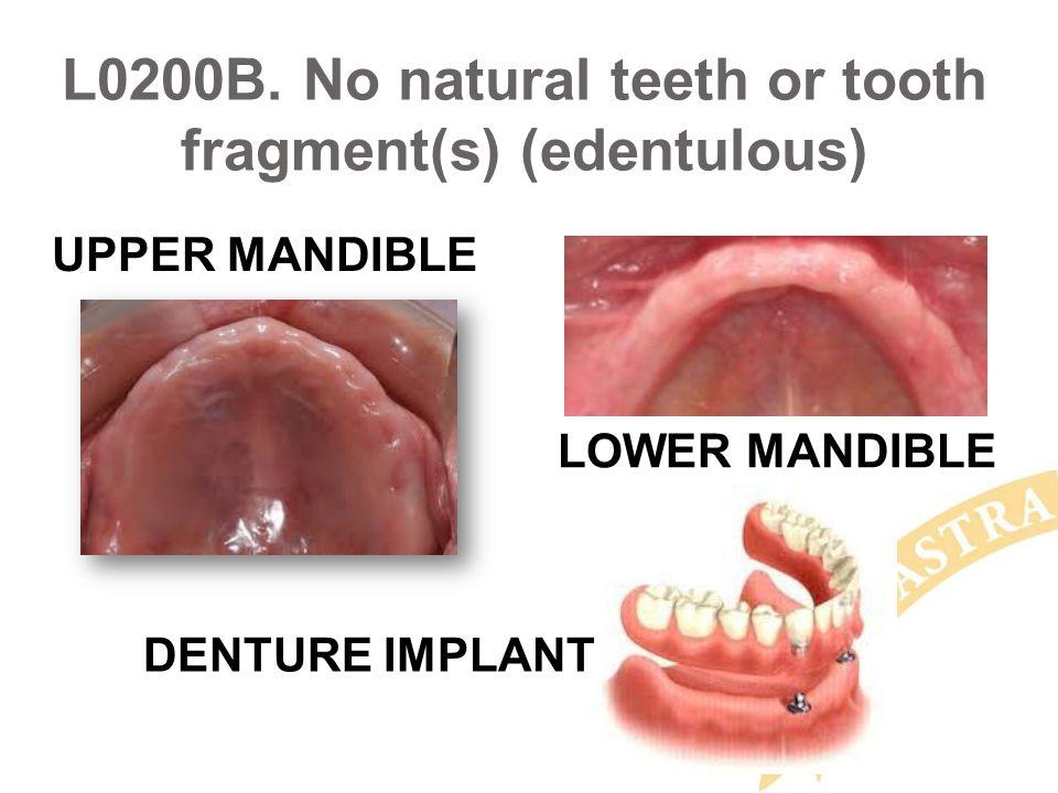 L0200B. No natural teeth or tooth fragment(s) (edentulous) UPPER MANDIBLE LOWER MANDIBLE DENTURE IMPLANT