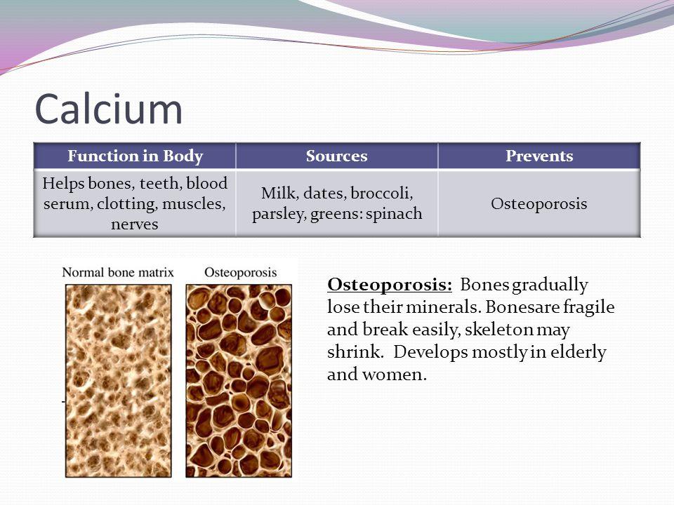 Calcium Osteoporosis: Bones gradually lose their minerals.