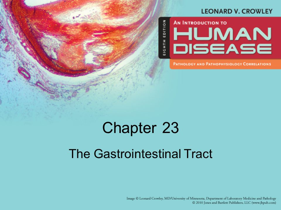 Learning Objectives (1 of 2) Identify major types of cleft lip and cleft palate deformity Explain pathogenesis and prevention of dental caries and periodontal disease Describe common congenital anomalies of the GIT, clinical manifestations, diagnosis, treatment Describe three most common lesions of the esophagus that lead to esophageal obstruction Explain pathogenesis, complications, and treatment of peptic ulcer Describe types and clinical manifestations of acute and chronic enteritis