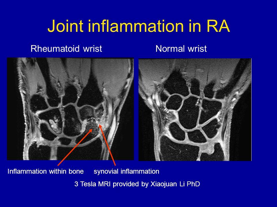 Joint inflammation in RA Rheumatoid wrist Normal wrist Inflammation within bone synovial inflammation 3 Tesla MRI provided by Xiaojuan Li PhD