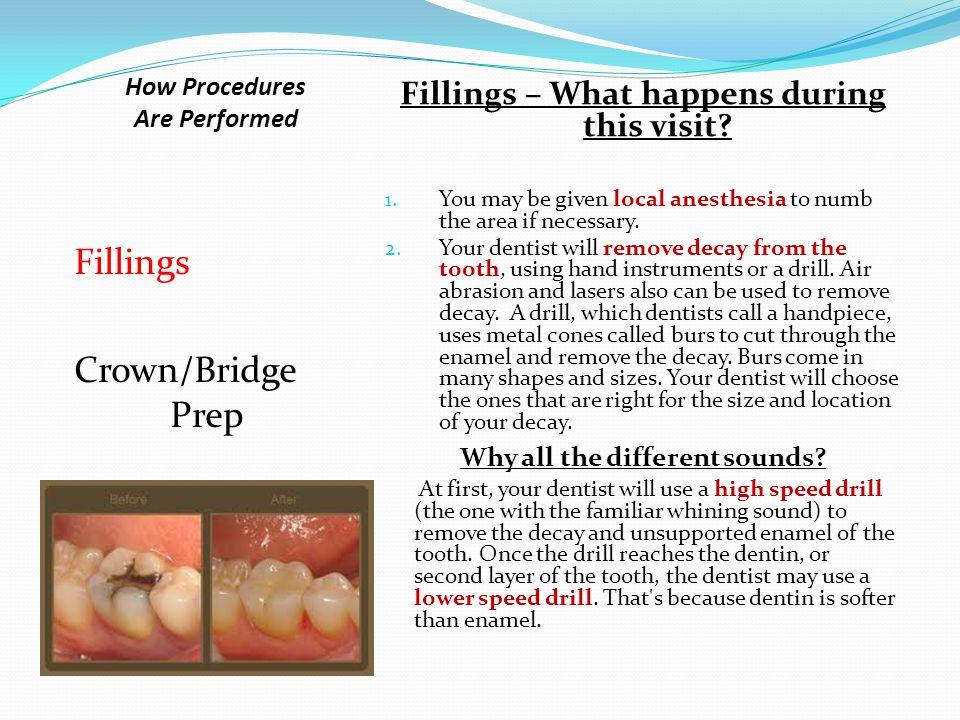 Crown/Bridge, Fixed, and Removable Prosthetics: Different types Crown/Bridge Removable Prosthetics Complete Denture Immediate Denture Partial Denture