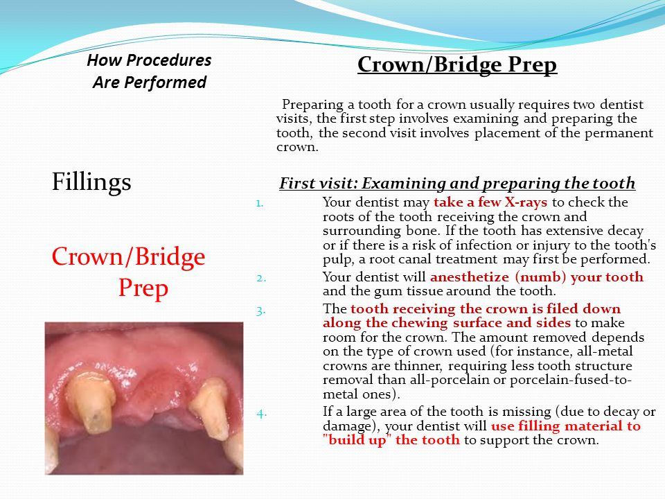 How Procedures Are Performed Fillings Crown/Bridge Prep Fillings – What happens during this visit?...continued 3. Once all the decay is removed, your