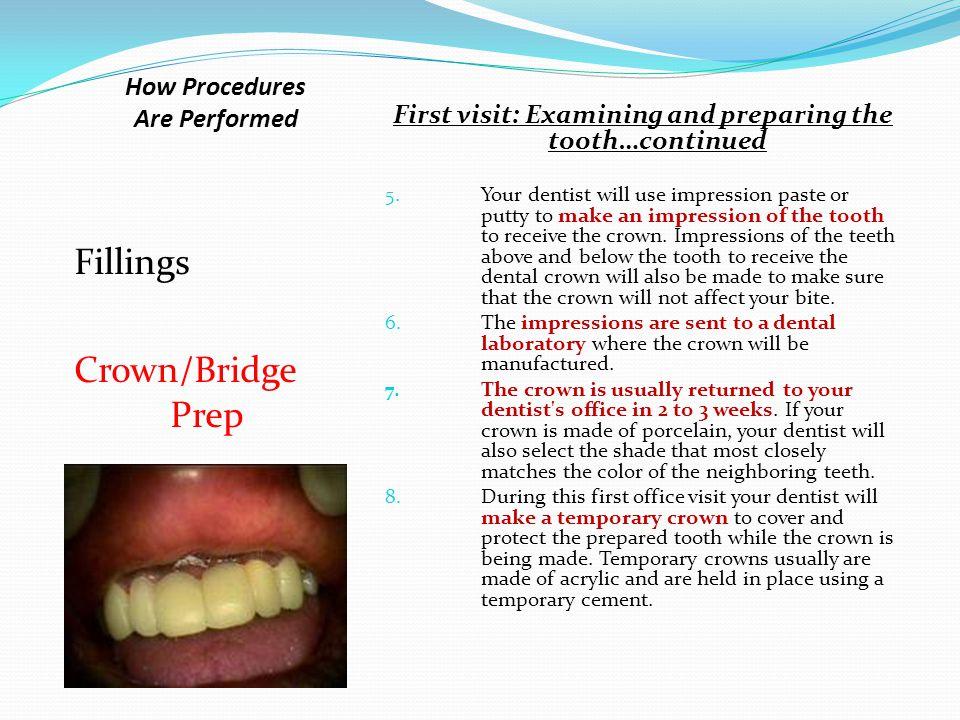 How Procedures Are Performed Fillings Crown/Bridge Prep Alternative methods