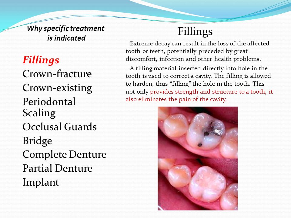 Fillings Crown-fracture Crown-existing Periodontal Scaling Occlusal Guards Bridge Complete Denture Partial Denture Implant Fillings Extreme decay can result in the loss of the affected tooth or teeth, potentially preceded by great discomfort, infection and other health problems.