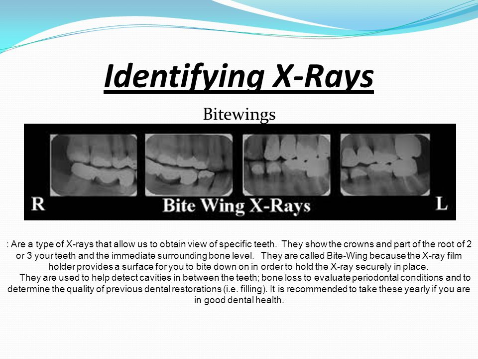 Periapical Identifying X-Rays Are used to provide images of the entire tooth from crown to root tip. They are utilized to display the root, cysts, abs