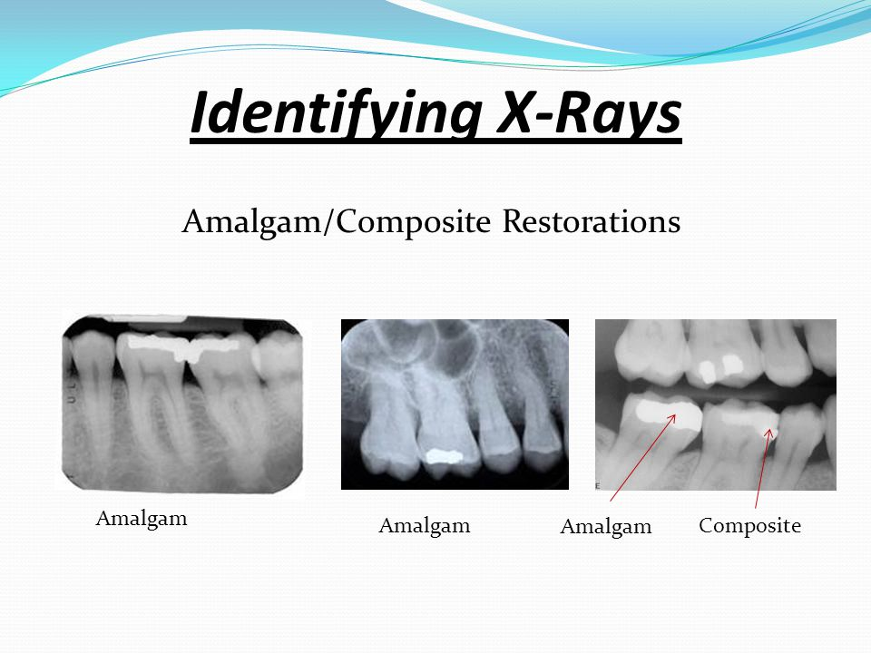 Bitewings Identifying X-Rays : Are a type of X-rays that allow us to obtain view of specific teeth. They show the crowns and part of the root of 2 or