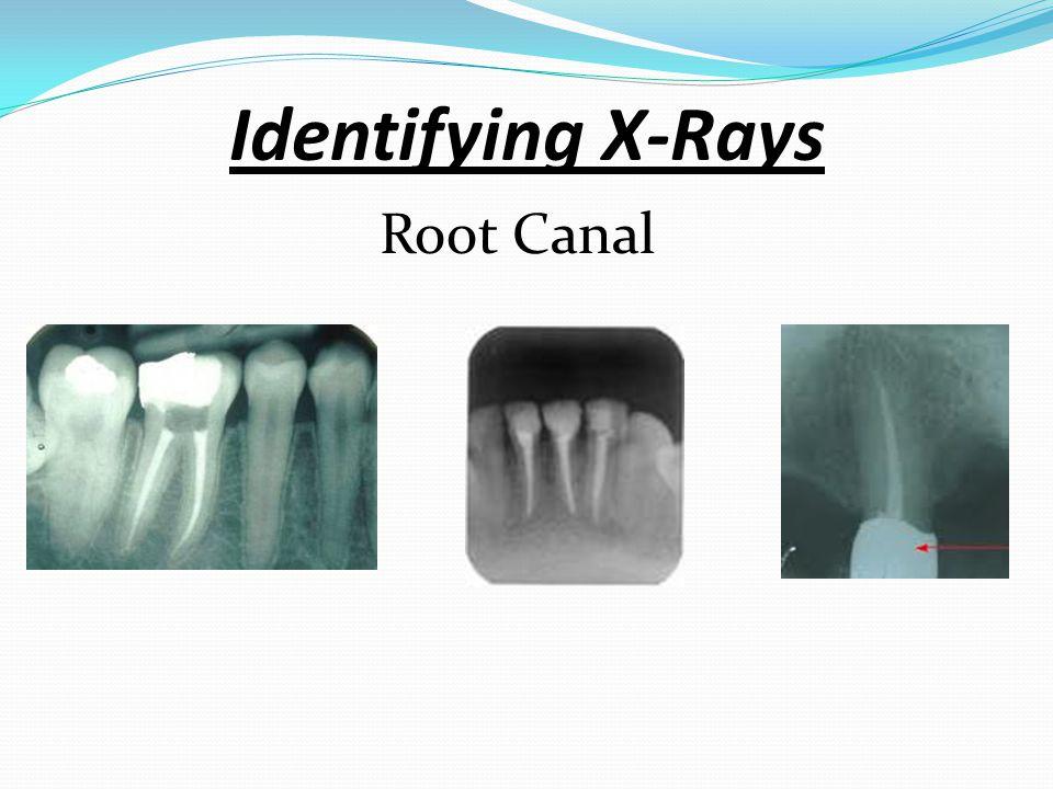 Identifying X-Rays Amalgam/Composite Restorations Amalgam Composite