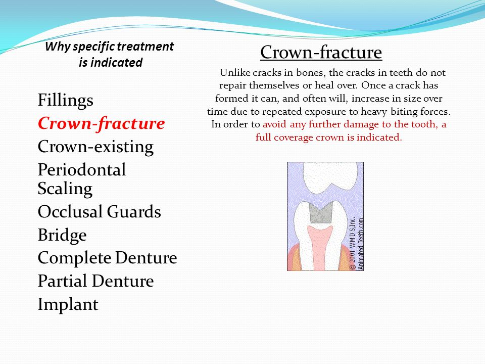 Fillings Crown-fracture Crown-existing Periodontal Scaling Occlusal Guards Bridge Complete Denture Partial Denture Implant Crown-fracture Unlike cracks in bones, the cracks in teeth do not repair themselves or heal over.