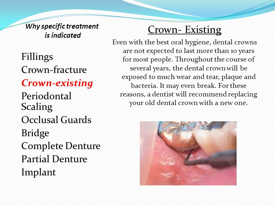 Fillings Crown-fracture Crown-existing Periodontal Scaling Occlusal Guards Bridge Complete Denture Partial Denture Implant Crown-fracture Unlike crack