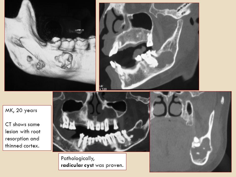 AH, 18 years periapical radiolucency on right molar region of mandible. Radicular Cyst