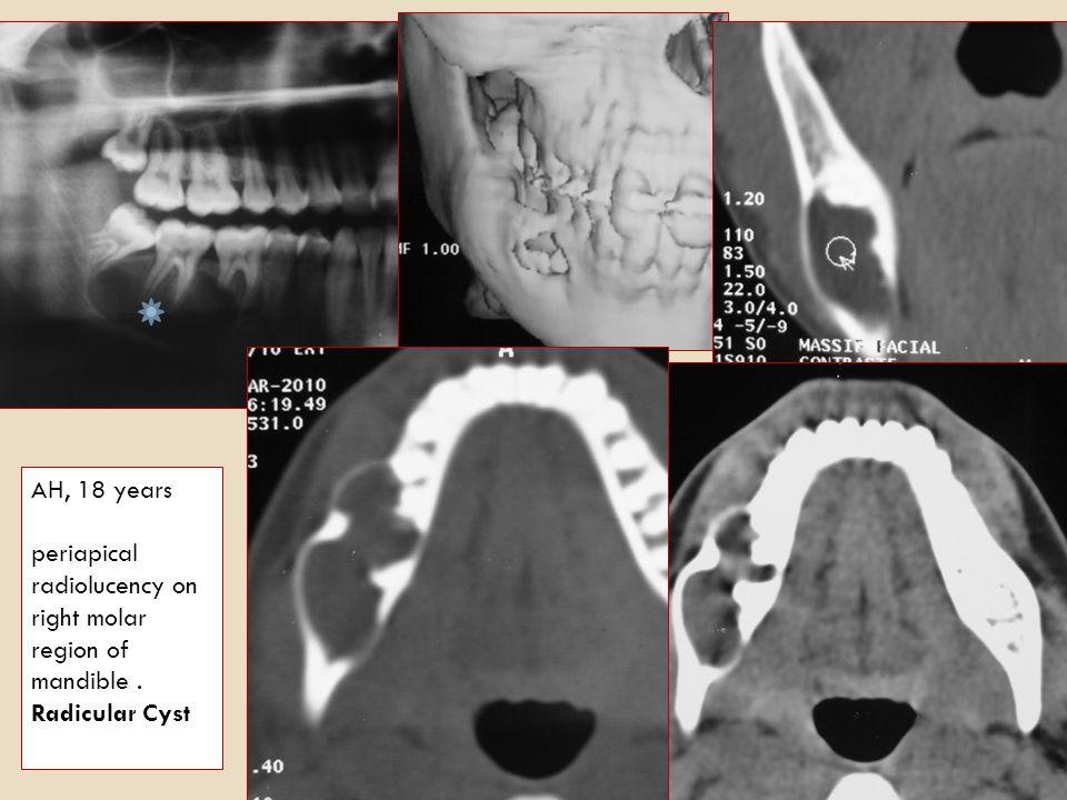 Others Odontogenic Cysts: Inflammatory Cysts: Radicular (periapical) Cyst, paradental Cyst Developmental Cysts: Dentigerous (follicular) Cyst, developmental Lateral Periodontal Cyst, odontogenic Keratocyst, glandular Odontogenic Cyst (GOC).