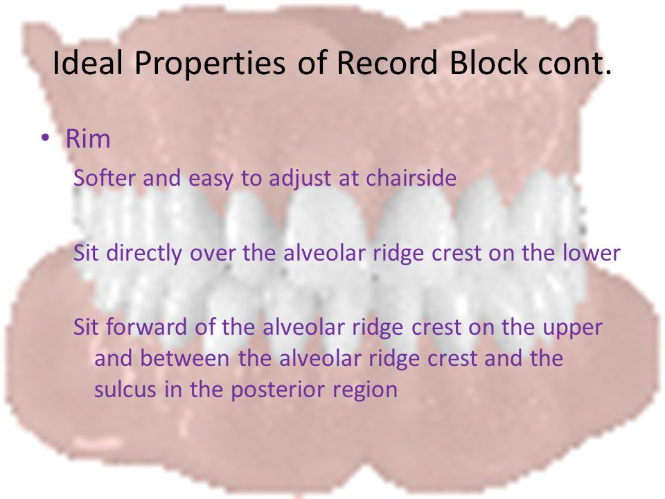Ideal Properties of Record Block cont.