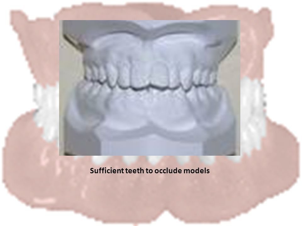 Sufficient teeth to occlude models