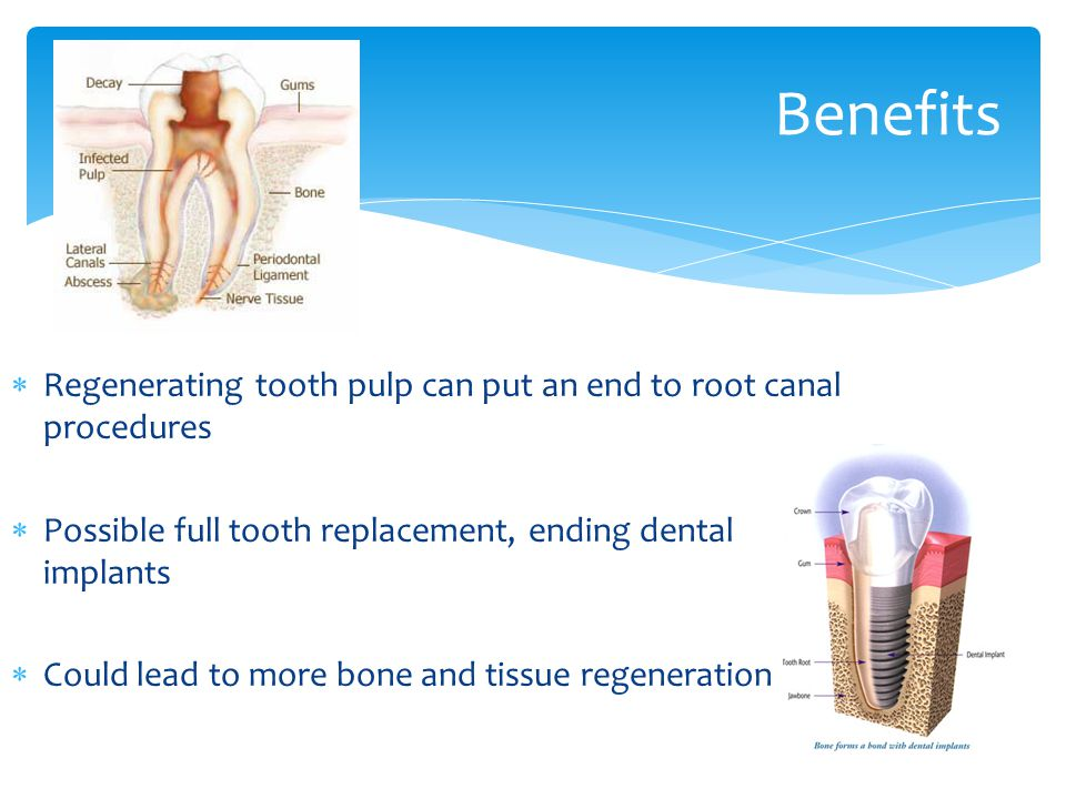 50% of Americans have a cavity that can lead to a root canal by the age of 15 Root Canals Pain Level Age MildSevereIntenseUnbearable 18-2011.8%18.2%50.0%0% 21-3029.4%18.2%33.3% 31-4029.4%31.8%16.7%66.7% 41-5017.6%31.8%0% 51-60 5.9% 0%